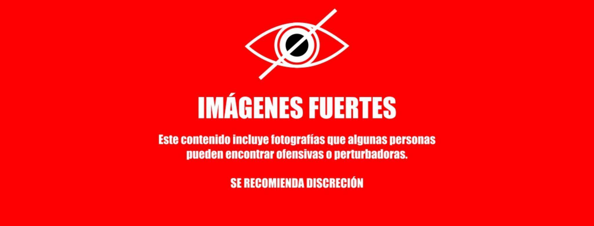 Imágenes Fuertes